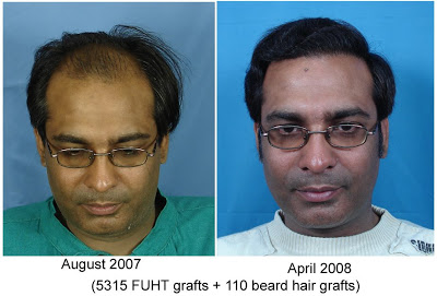 Sunil - 5315 FUHT +110 beard grafts