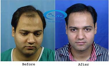 Advantages of FUT (Follicular Unit Transplantation) Treatment