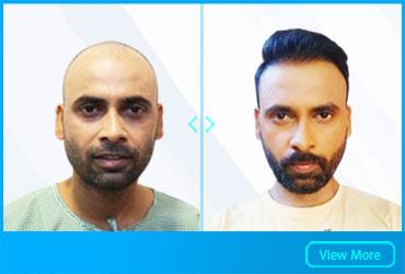 BENEFITS OF HAIR TRANSPLANT SURGERY
