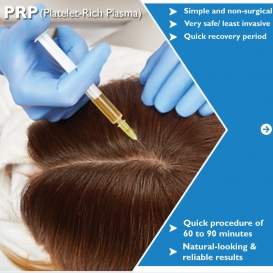 BEST PRP TREATMENT IN DELHI DR AS CLINIC