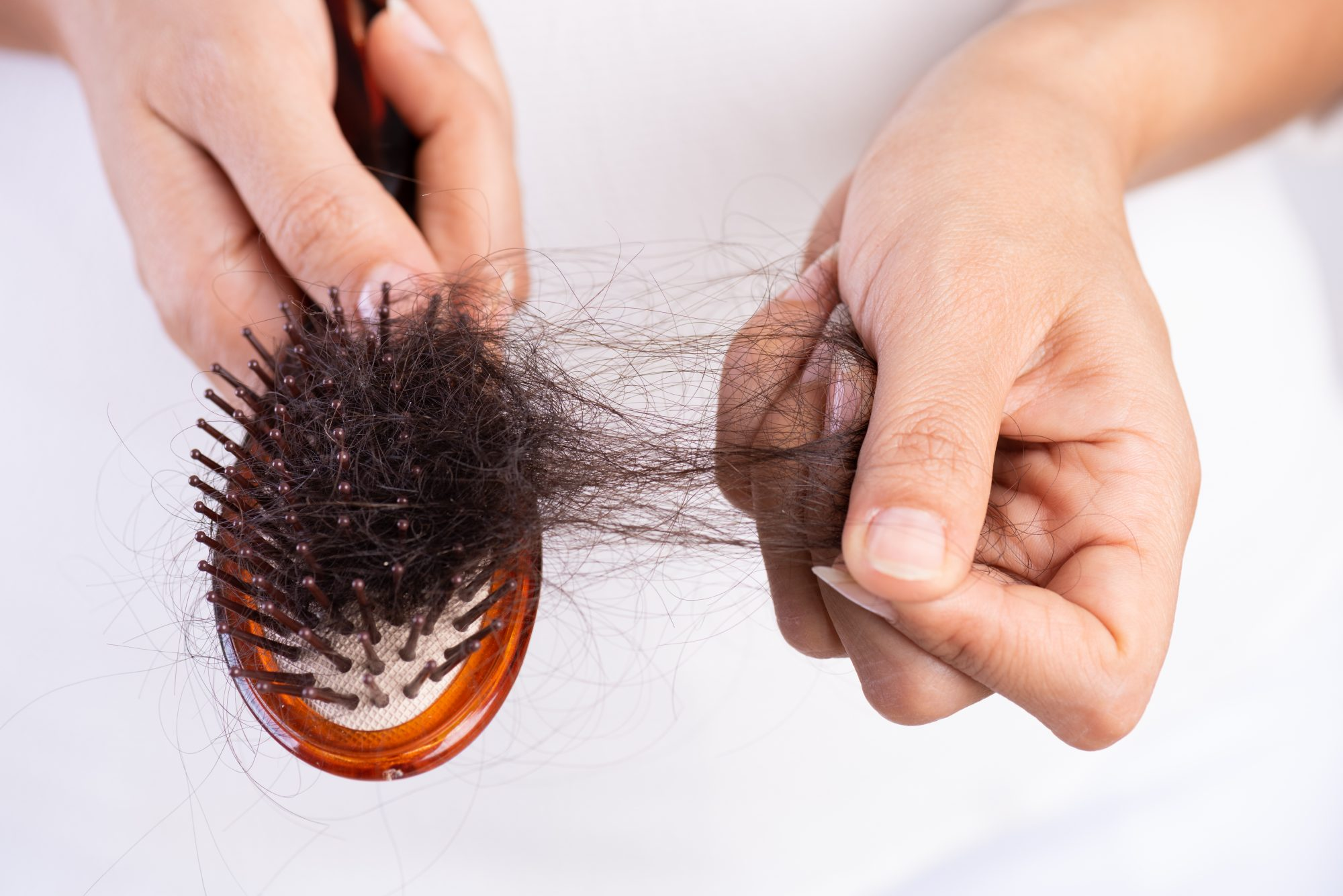 BEWARE OF THESE 6 DISEASES THAT CAUSE HAIR FALL