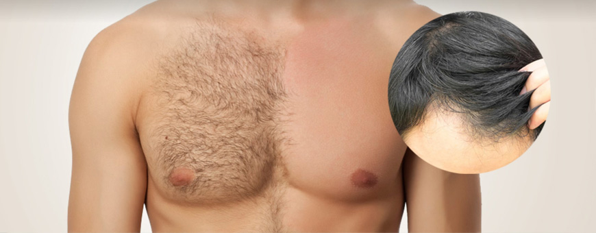 Body Hair Transplant (BHT) - the preshaving protocol