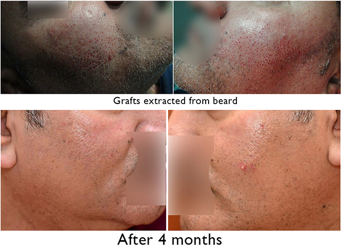 Beard Hair Removal No visible scarring