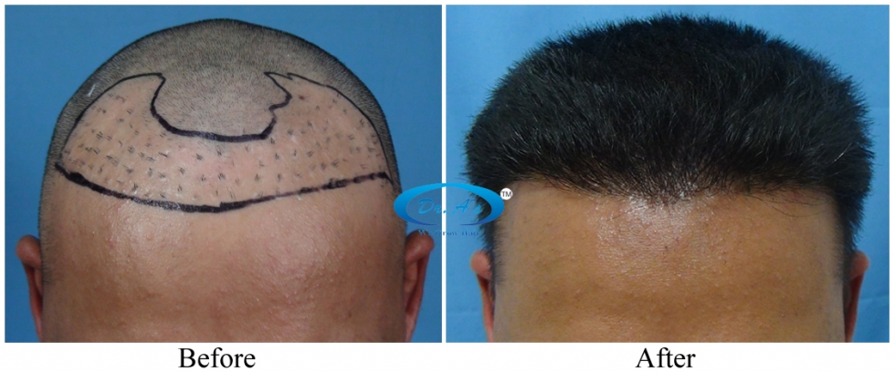 COMPARISON BETWEEN WIGS AND HAIR TRANSPLANT