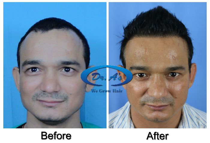 Difference Between FUE and FUT Hair Transplant Treatment