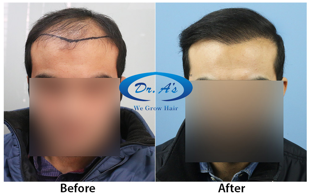 Dos and Donts after Hair transplant treatment