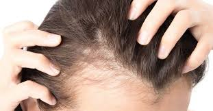Effective Treatment of Baldness for Females