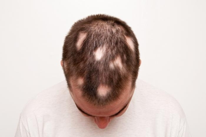 FACTS ABOUT ALOPECIA AREATA