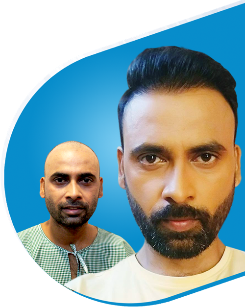 Get the Best Painless Hair Transplant Treatment in Delhi