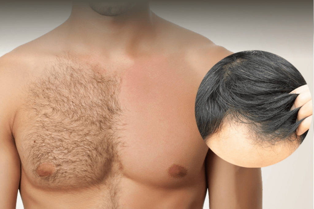 HOW AND WHY DO BODY HAIR AND SCALP HAIR DIFFER
