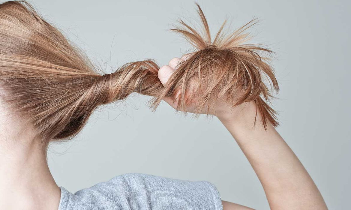 HOW CAN HAIR LOSS BE CAUSED BY OVER STYLING