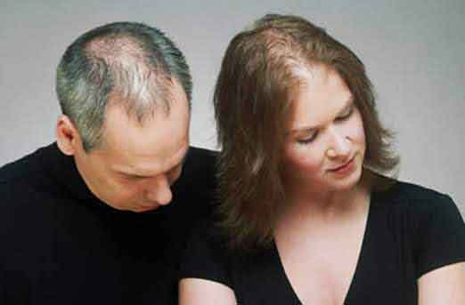 HOW HAIRLOSS EFFECTS CONFIDENCE OF MEN AND WOMEN ALIKE
