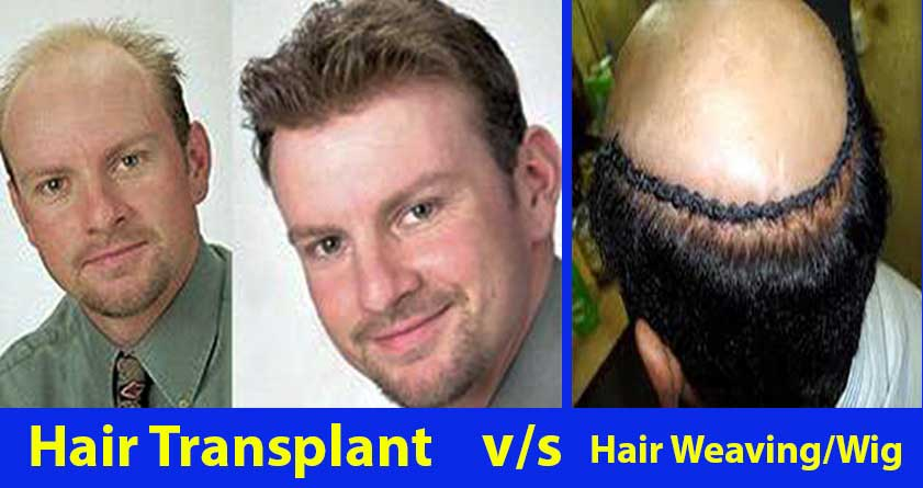 Hair Transplant V/S Hair System/Weave/Replacement