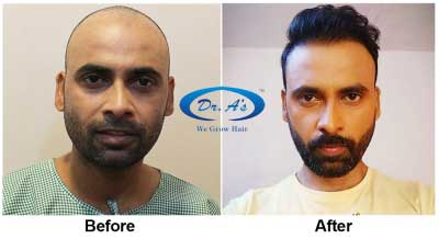 Hair Transplant Surgery - The Three Options For You