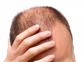Hair loss need not always be baldness androgenic alopecia