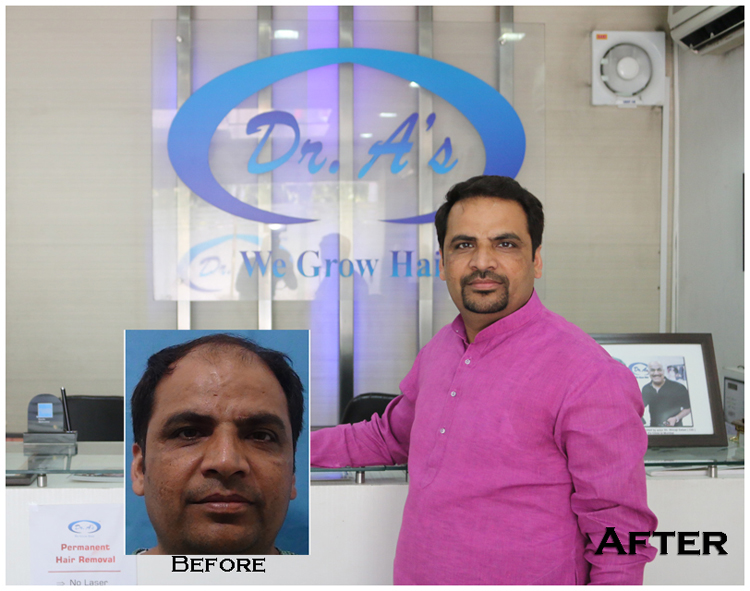 How Hair Transplant is so Famous in India