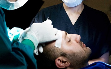 How to Choose the Right Hair Transplant Surgeon?