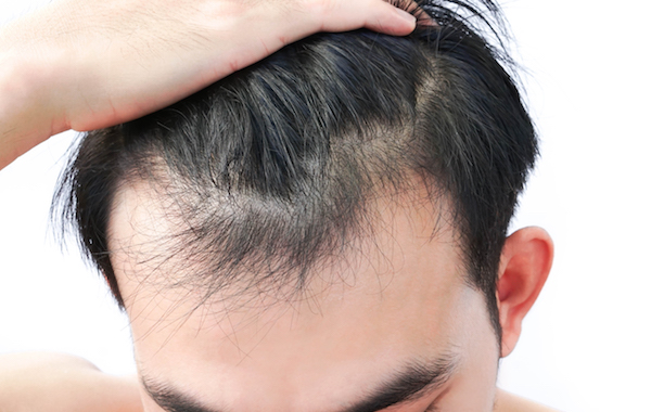 IS IT POSSIBLE FOR MICROBES TO HELP WITH HAIR LOSS