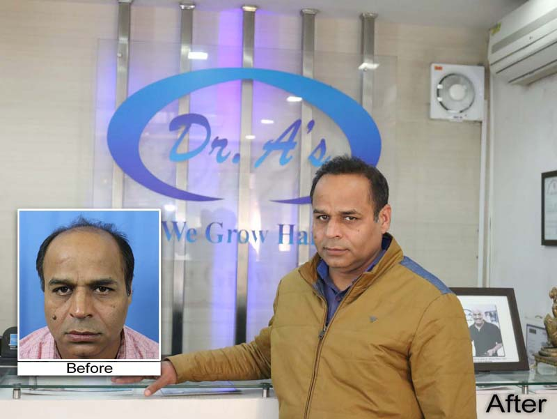 Know about Hair Transplant Cost