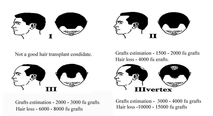 Norwood classification male pattern baldness
