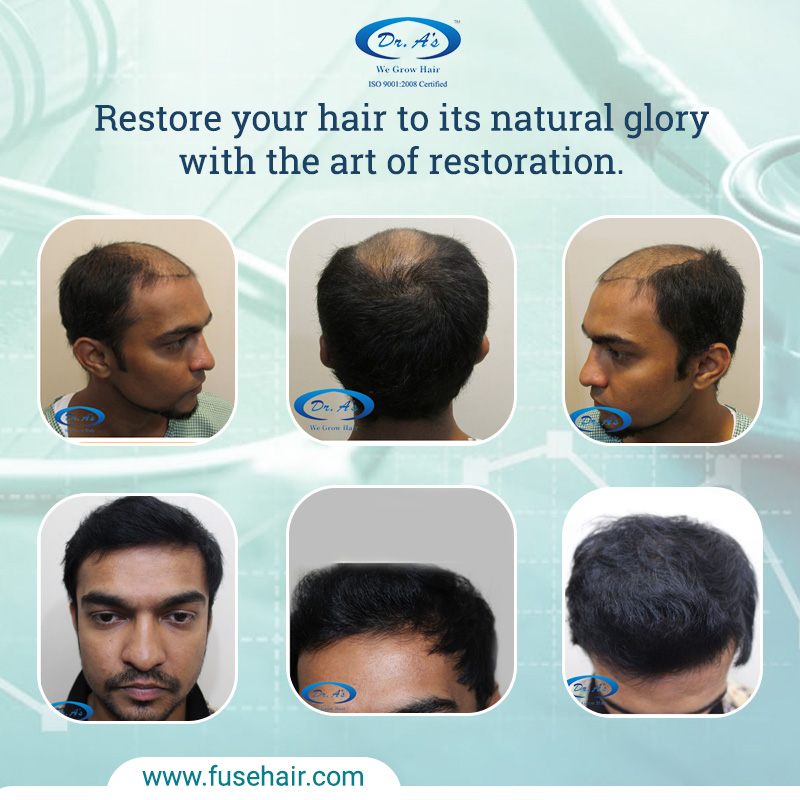 SHOULD YOU RECEIVE PRP TREATMENT IF YOURE SUFFERING FROM HAIR LOSS
