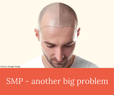 SMP Another Big Problem