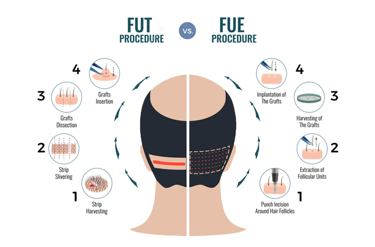 Techniques of Hair Transplant Treatment