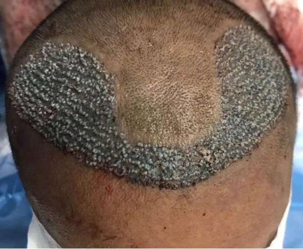 The Perils of Direct Hair Transplant DHT