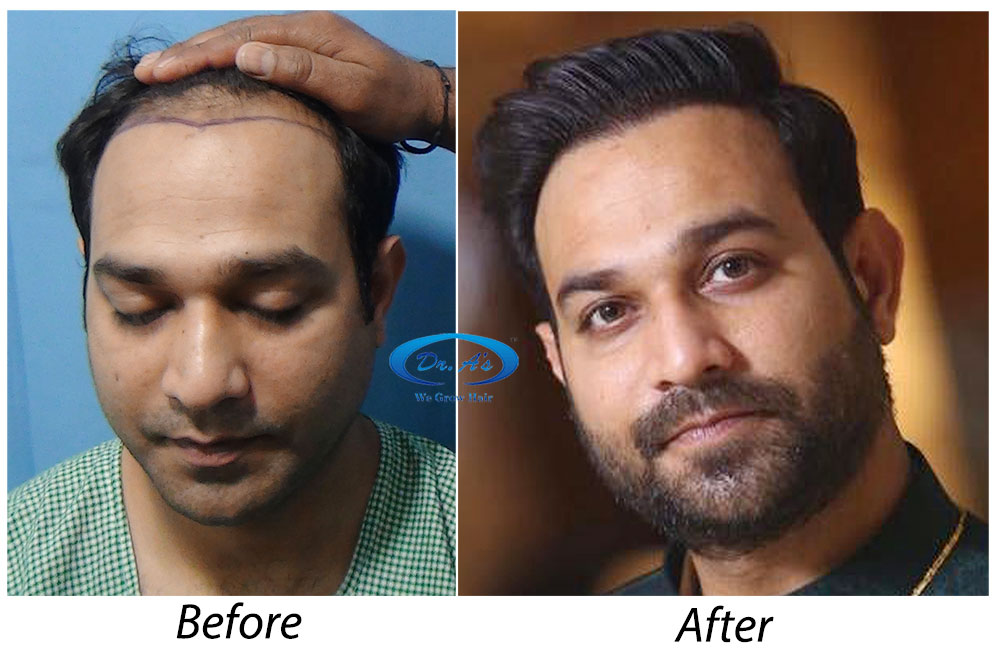 Things to know before you go ahead for Hair Transplant