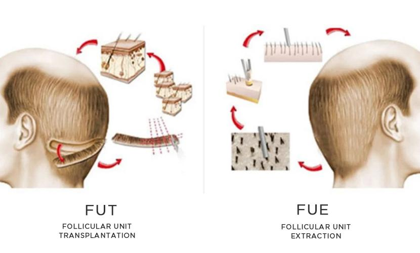 Which hair transplant method to choose