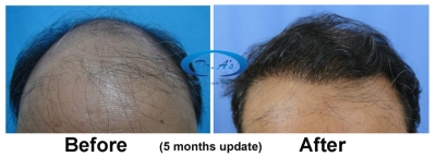 What is modern hair transplant?