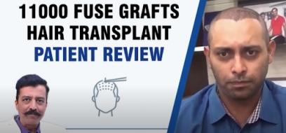 11000 Fuse Grafts Hair Transplant Patient Review