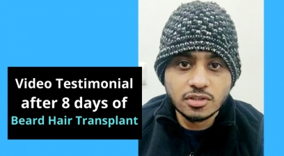 Beard Hair Transplant Video Testimonial