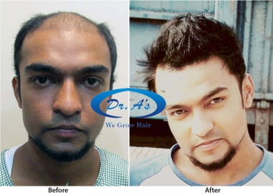 Body Hair Transplants (FUSE) in Mangalore