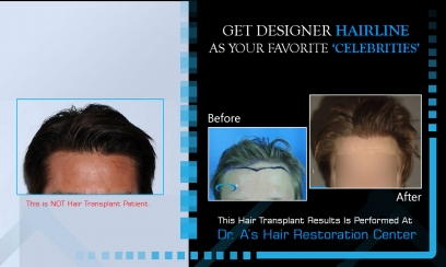 Desire Hairline in Greater Noida