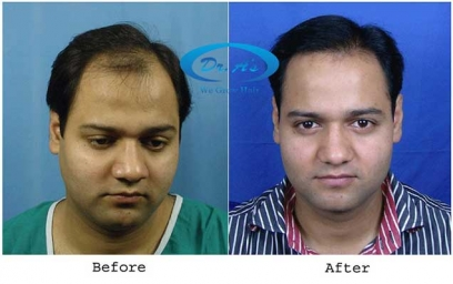 Dr. A's Fuse Technique in Jalandhar