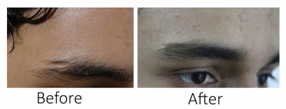 Eyebrow Restoration in Nepal