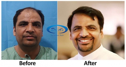 FUE Hair Transplant in Uae