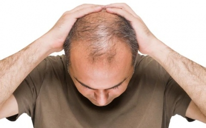 Hair Loss in Men in Lakhisarai