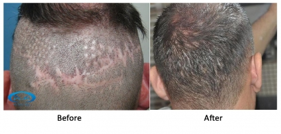 Hair Transplant on Scar in England