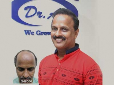 Hair Transplant in Theni