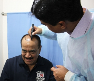 Mature Hairline in India