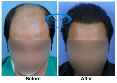 Mega Session in Hair Transplant in Tawang