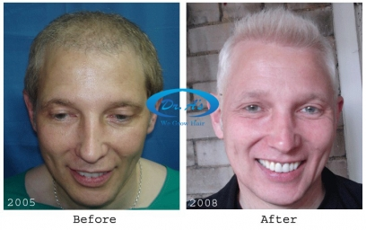Repair Hair Transplant in Africa