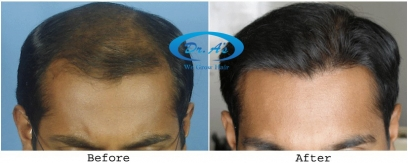 Scalp Hair Transplants (FUHT) in Salem