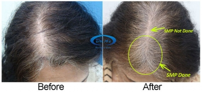 Scalp Micro Pigmentation in Chhattisgarh
