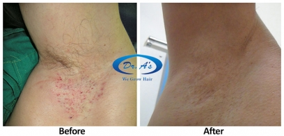 Unwanted Hair Removal in England