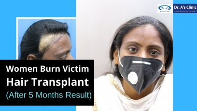 Women Burn Victim Hair Transplant