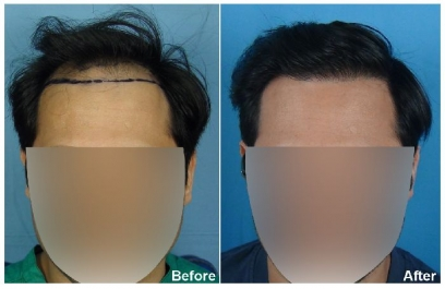 Youthful Hairline in Nepal