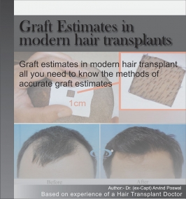 GRAFT ESTIMATES IN MORDERN HAIR TRANSPLANTS